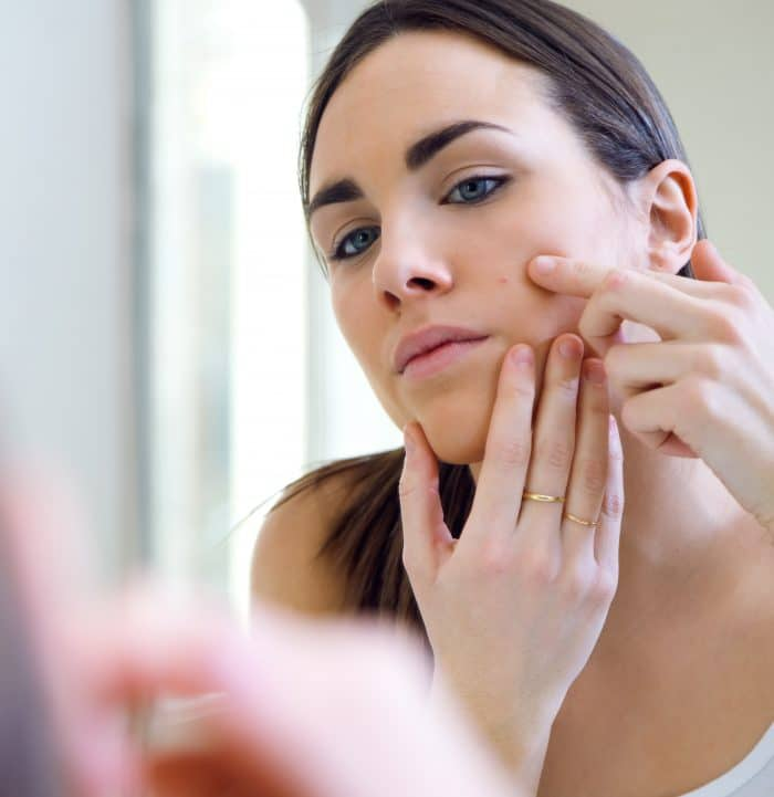 My experience with getting rid of acne